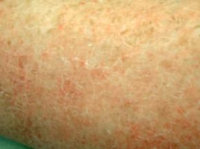 Eczema2