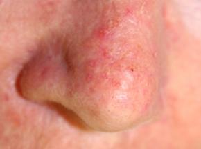 Non-melanoma2