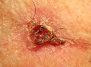 Non-melanoma3