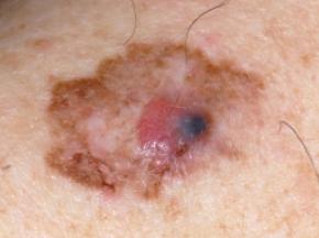 melignant-melanoma-3